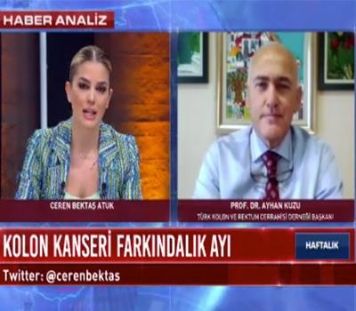 """""""Kolon Kanseri Farkındalık Ayı"""" 29.03.2021"""